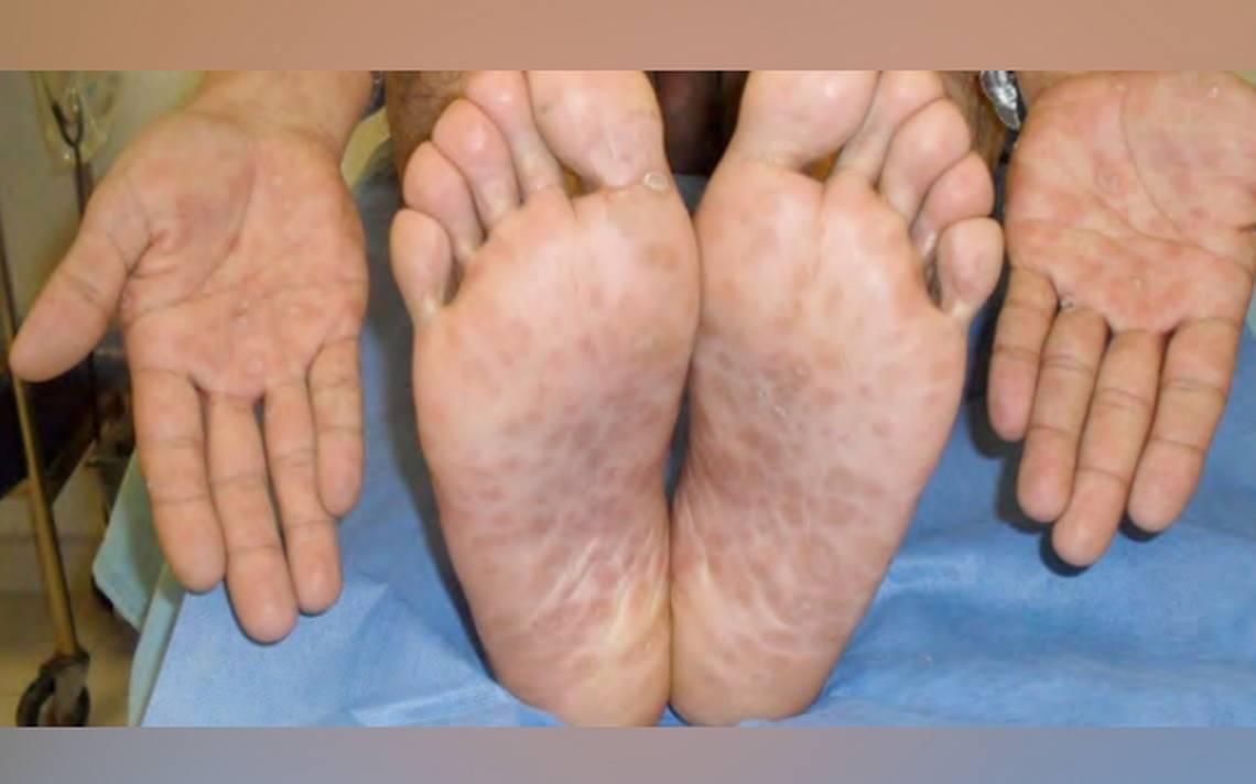 transmisión sifilis y sintomas de diabetes